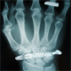 Hand X-ray