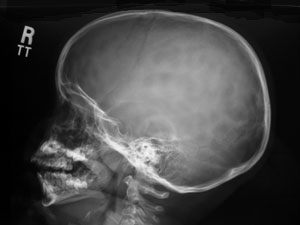 Lateral Skull X-ray