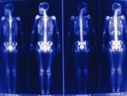 Nuclear Medicine X-ray